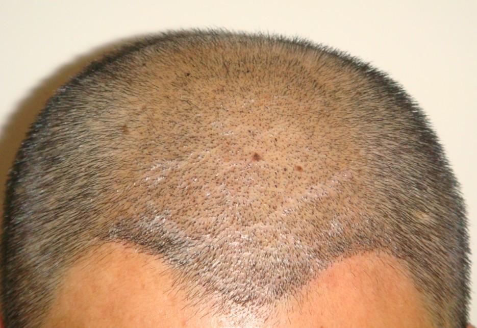 植发脱落期头皮没黑点