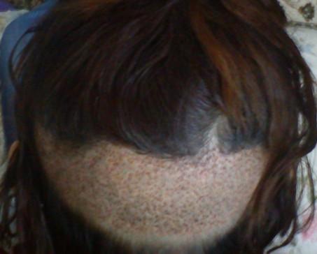 上海3月8号kfy02ptt02加密1000单位女性天生头发