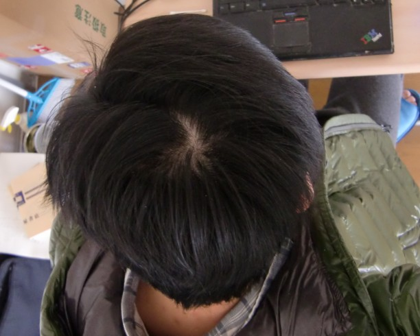 头发稀少可以植发吗?图片