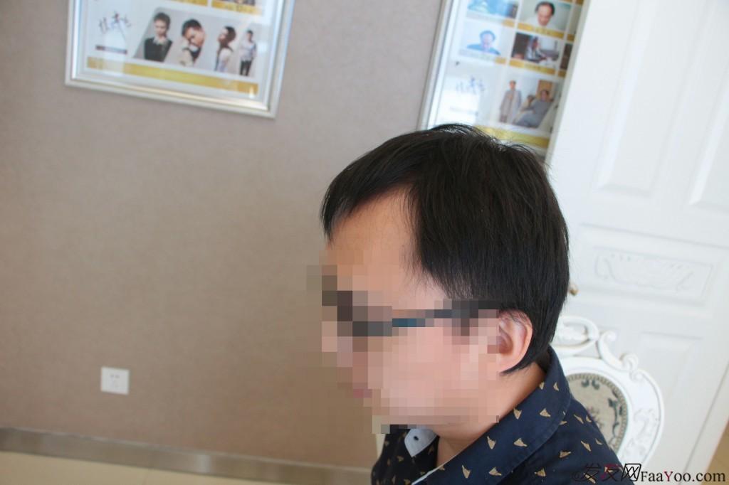 纠结,犹豫,迷茫,29岁的我北京科发源植发的前前后后