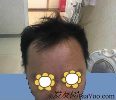 赵晓熊植发,北京科发源 ,17年11月,ptt加密,2750单位