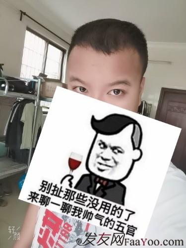 广州科发源3800单位植发后5个月的效果