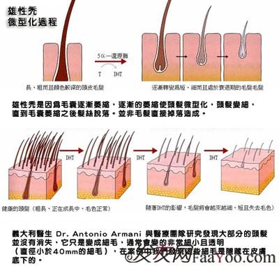 雄性脱发的原因及有效的治疗方法有哪些