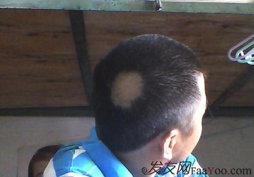 有效的斑秃治疗偏方简介
