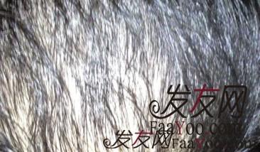 脂溢性脱发都哪些方法能够治疗呢?