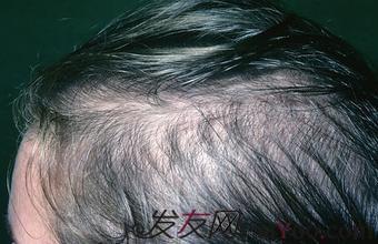 治疗脂溢性脱发的方法有什么呢?